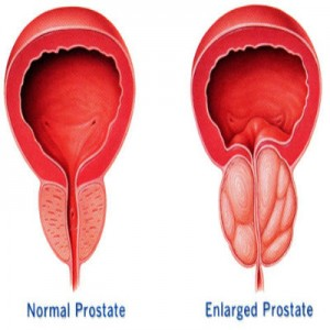Symptoms and Types of Prostate Enlargement
