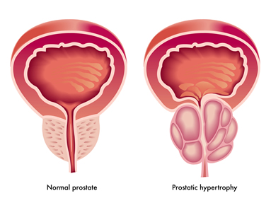 How is Prostate Cancer Diagnosed