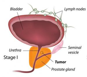 How Prostate Cancer Develops